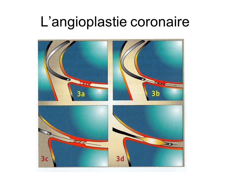 Langioplastie coronaire