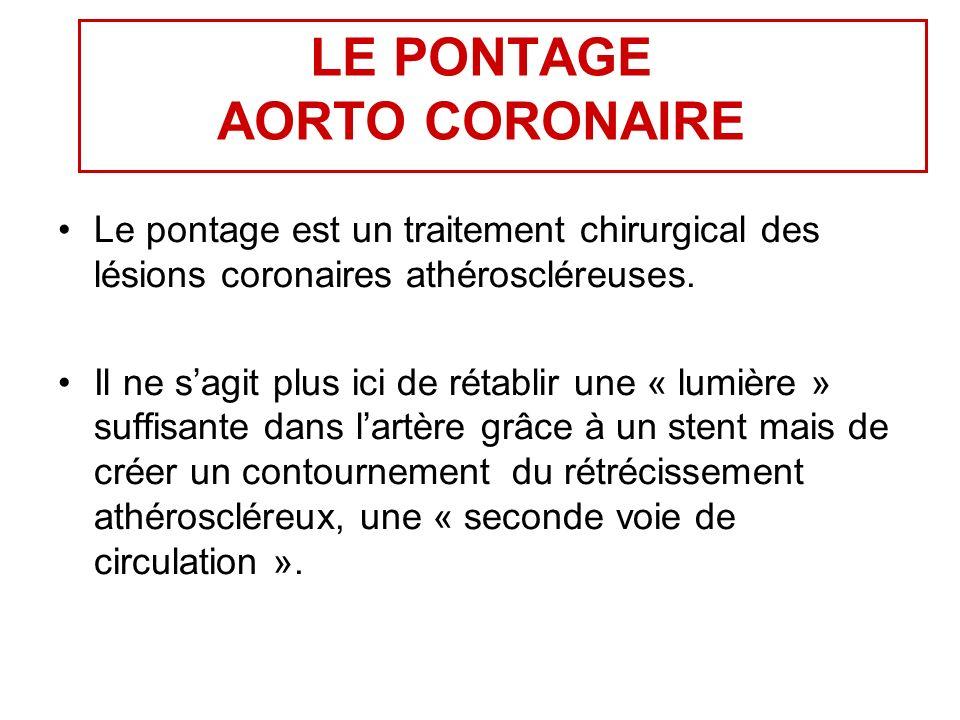 LE PONTAGE AORTO CORONAIRE Le pontage est un traitement chirurgical des lésions coronaires athéroscléreuses.