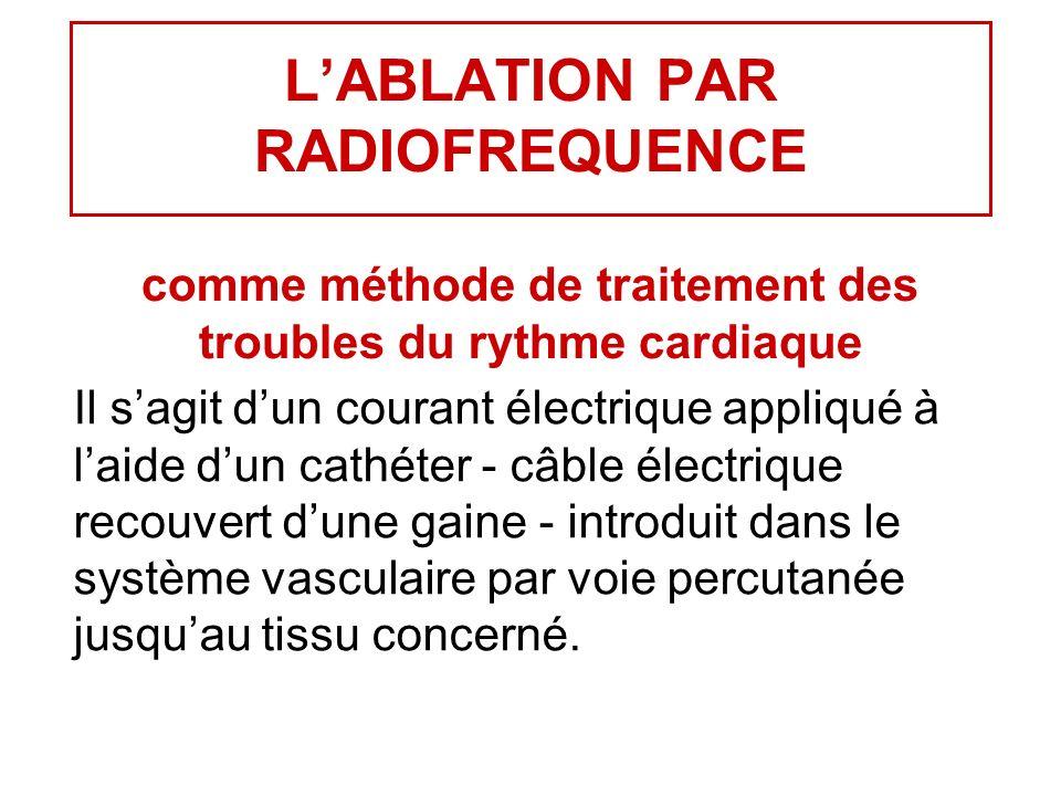 LABLATION PAR RADIOFREQUENCE comme méthode de traitement des troubles du rythme cardiaque Il sagit dun courant électrique appliqué à laide dun cathéter - câble électrique recouvert dune gaine - introduit dans le système vasculaire par voie percutanée jusquau tissu concerné.