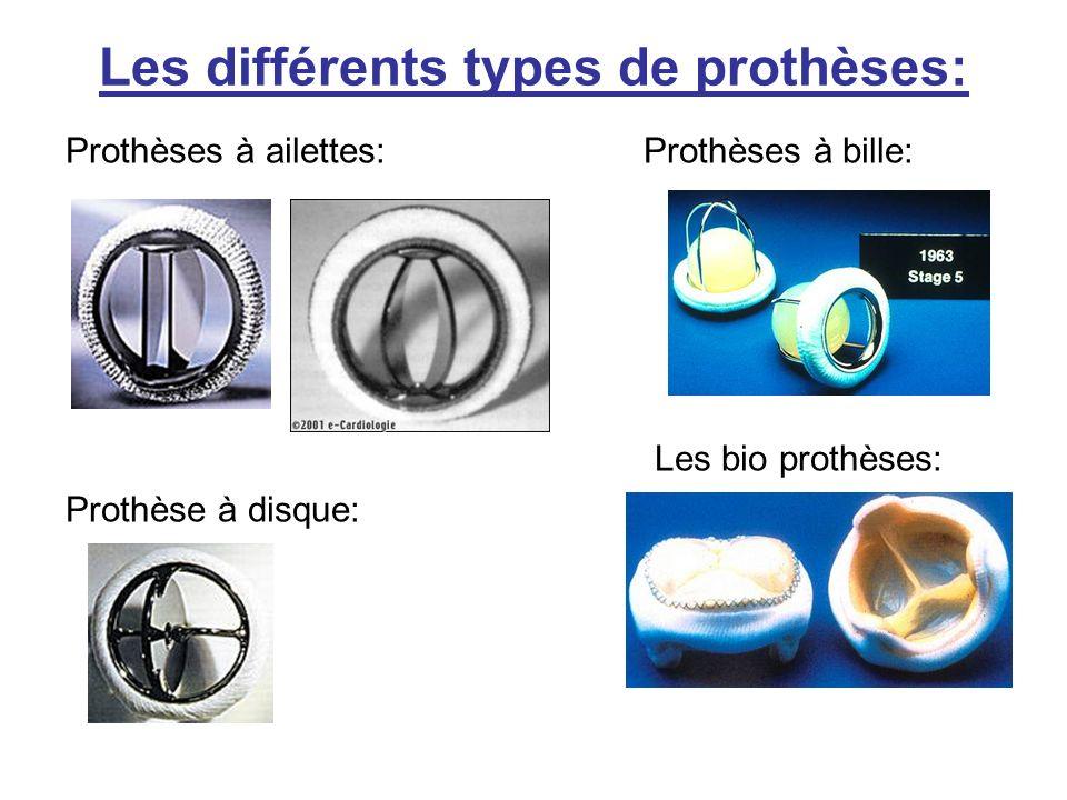 Prothèses à ailettes: Prothèses à bille: Les bio prothèses: Prothèse à disque: Les différents types de prothèses: