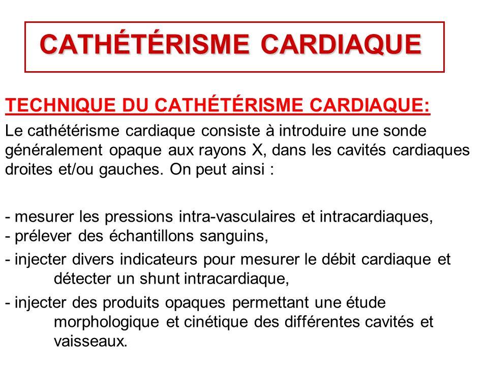 CATHÉTÉRISME CARDIAQUE TECHNIQUE DU CATHÉTÉRISME CARDIAQUE: Le cathétérisme cardiaque consiste à introduire une sonde généralement opaque aux rayons X, dans les cavités cardiaques droites et/ou gauches.
