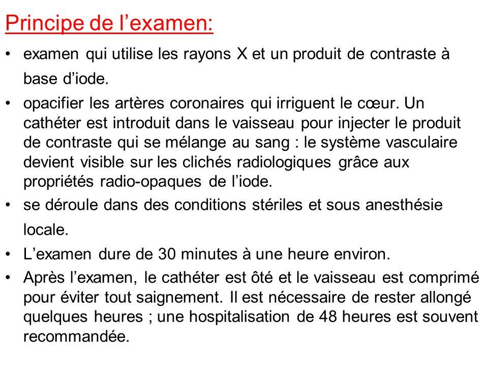 Principe de lexamen: examen qui utilise les rayons X et un produit de contraste à base diode.