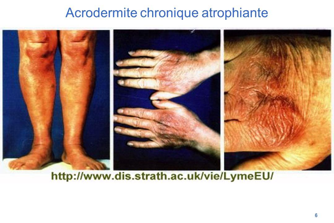 6 Acrodermite chronique atrophiante