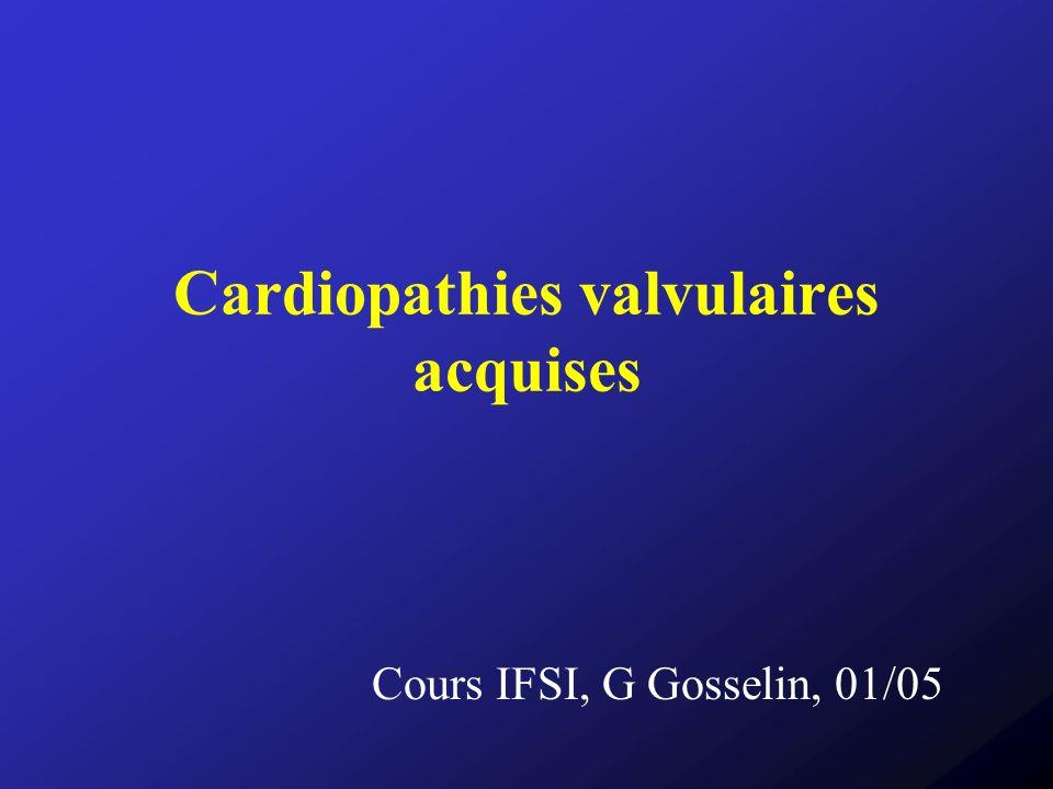 Cardiopathies valvulaires acquises Primitives ou complications de pathologies diverses Fréquentes (environ 25% des maladies du cœur) Touchent principalement les valves mitrale et aortique, +/- valve tricuspide