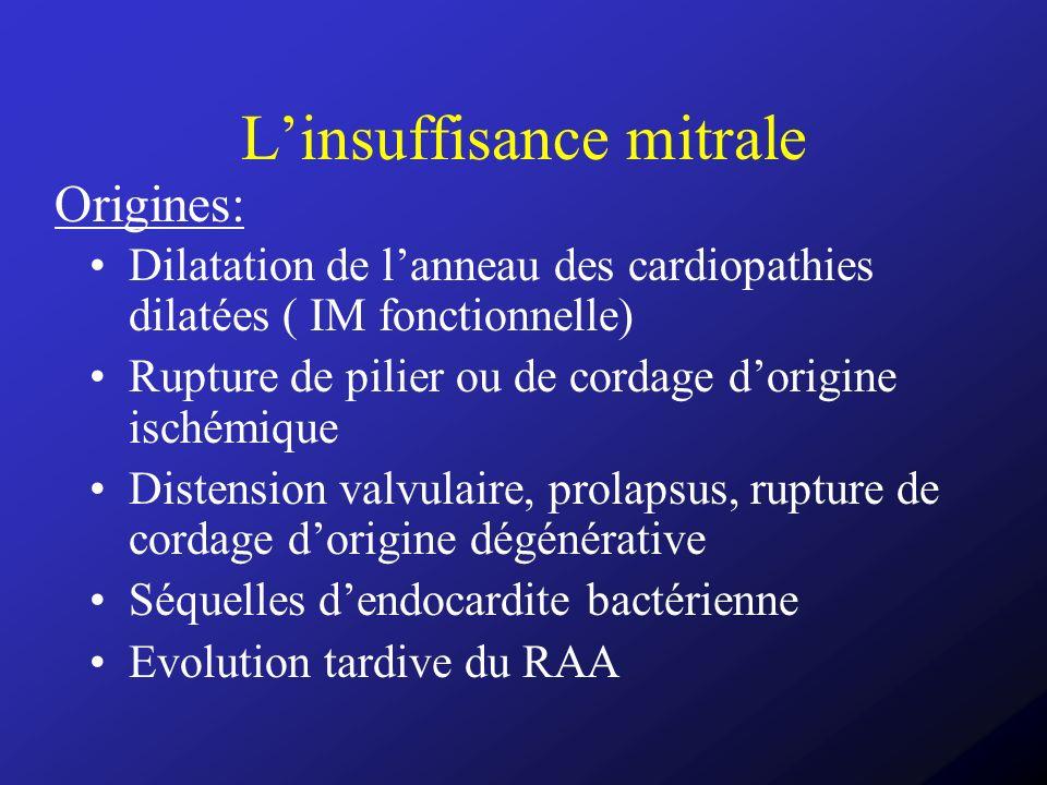 Dilatation de lanneau des cardiopathies dilatées ( IM fonctionnelle) Rupture de pilier ou de cordage dorigine ischémique Distension valvulaire, prolap