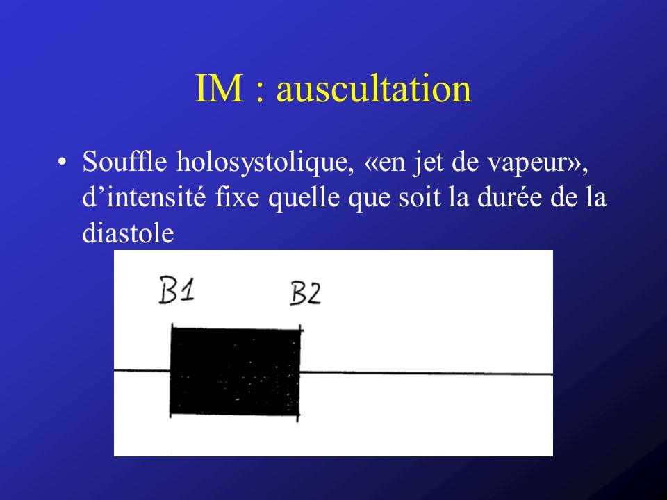 IM : auscultation Souffle holosystolique, «en jet de vapeur», dintensité fixe quelle que soit la durée de la diastole
