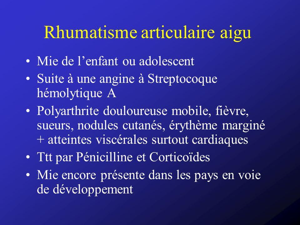 Rhumatisme articulaire aigu Mie de lenfant ou adolescent Suite à une angine à Streptocoque hémolytique A Polyarthrite douloureuse mobile, fièvre, sueu