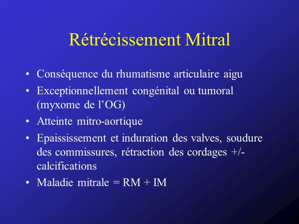 Rétrécissement Mitral Conséquence du rhumatisme articulaire aigu Exceptionnellement congénital ou tumoral (myxome de lOG) Atteinte mitro-aortique Epai