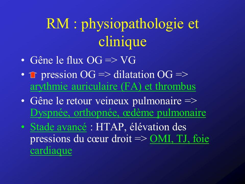 RM : physiopathologie et clinique Gêne le flux OG => VG pression OG => dilatation OG => arythmie auriculaire (FA) et thrombus Gêne le retour veineux p