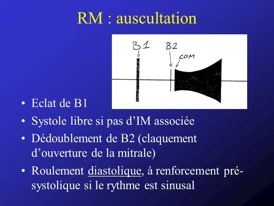 RM : auscultation Eclat de B1 Systole libre si pas dIM associée Dédoublement de B2 (claquement douverture de la mitrale) Roulement diastolique, à renf