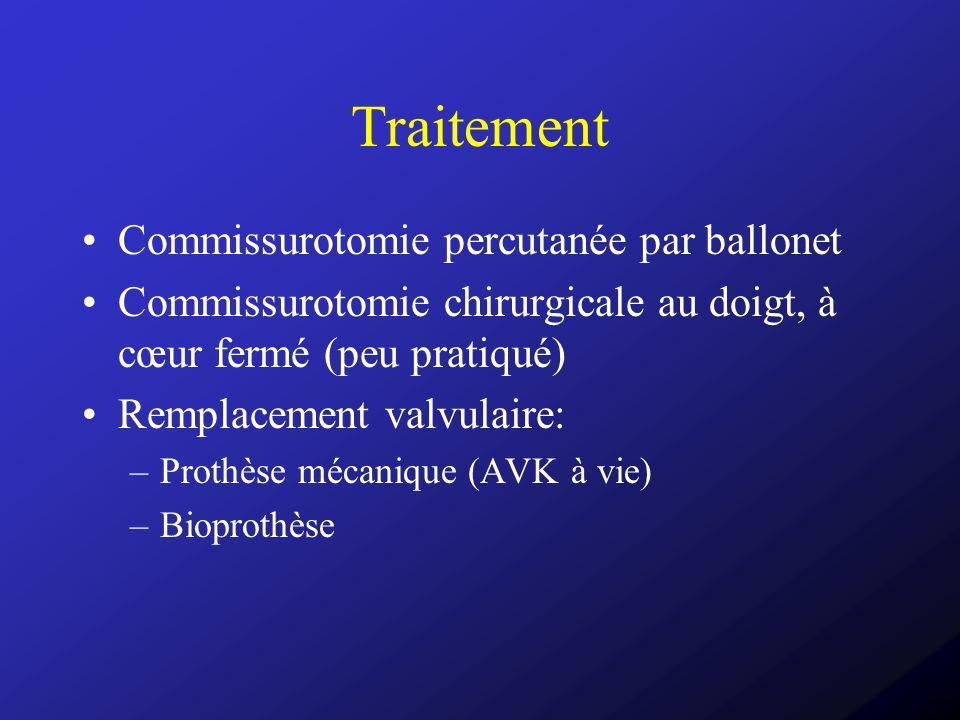 Traitement Commissurotomie percutanée par ballonet Commissurotomie chirurgicale au doigt, à cœur fermé (peu pratiqué) Remplacement valvulaire: –Prothè