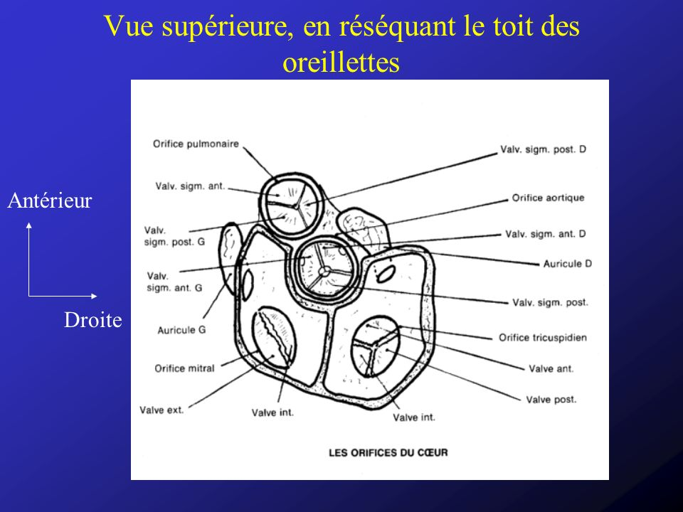 Types de dysfonctionnement Rétrécissement: dorigine organique, donc avec lésions du tissus valvulaire Insuffisance (régurgitation ou fuite): –Organique, par lésion du tissus valvulaire –Fonctionnelle, par dilatation de lanneau sur lequel sinsèrent les valves