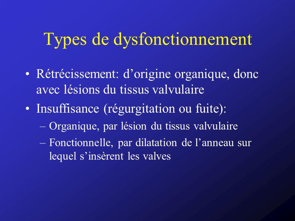 Types de dysfonctionnement Rétrécissement: dorigine organique, donc avec lésions du tissus valvulaire Insuffisance (régurgitation ou fuite): –Organiqu