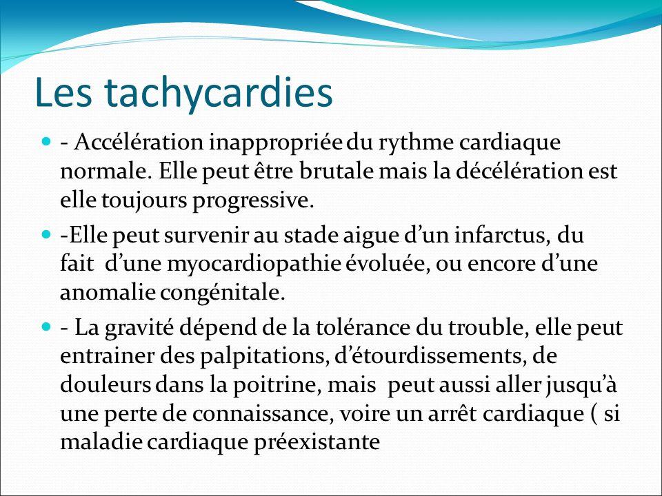 Les tachycardies - Accélération inappropriée du rythme cardiaque normale. Elle peut être brutale mais la décélération est elle toujours progressive. -