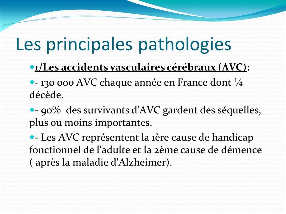 Les principales pathologies 1/Les accidents vasculaires cérébraux (AVC): - 130 000 AVC chaque année en France dont ¼ décède. - 90% des survivants d'AV