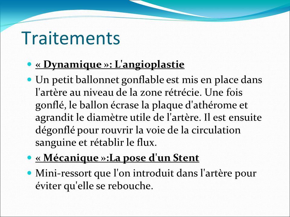 Traitements « Dynamique »: L'angioplastie Un petit ballonnet gonflable est mis en place dans l'artère au niveau de la zone rétrécie. Une fois gonflé,