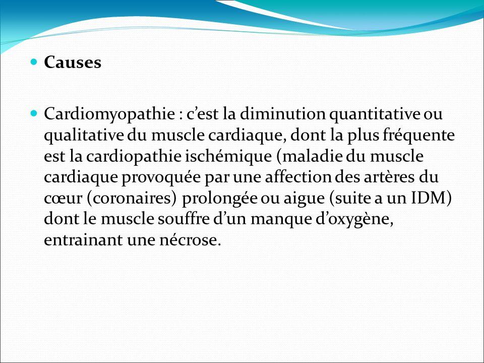 . Causes Cardiomyopathie : cest la diminution quantitative ou qualitative du muscle cardiaque, dont la plus fréquente est la cardiopathie ischémique (