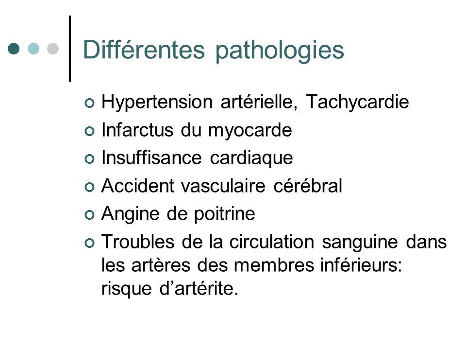 Différentes pathologies Hypertension artérielle, Tachycardie Infarctus du myocarde Insuffisance cardiaque Accident vasculaire cérébral Angine de poitr