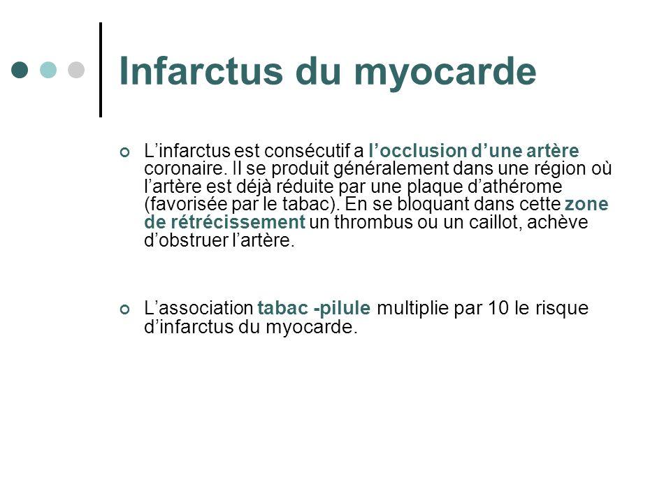 Infarctus du myocarde Linfarctus est consécutif a locclusion dune artère coronaire. Il se produit généralement dans une région où lartère est déjà réd