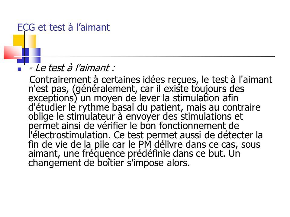 ECG et test à laimant - Le test à laimant : Contrairement à certaines idées reçues, le test à l'aimant n'est pas, (généralement, car il existe toujour