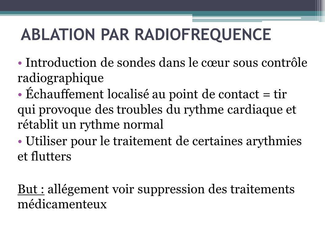 ABLATION PAR RADIOFREQUENCE Introduction de sondes dans le cœur sous contrôle radiographique Échauffement localisé au point de contact = tir qui provo