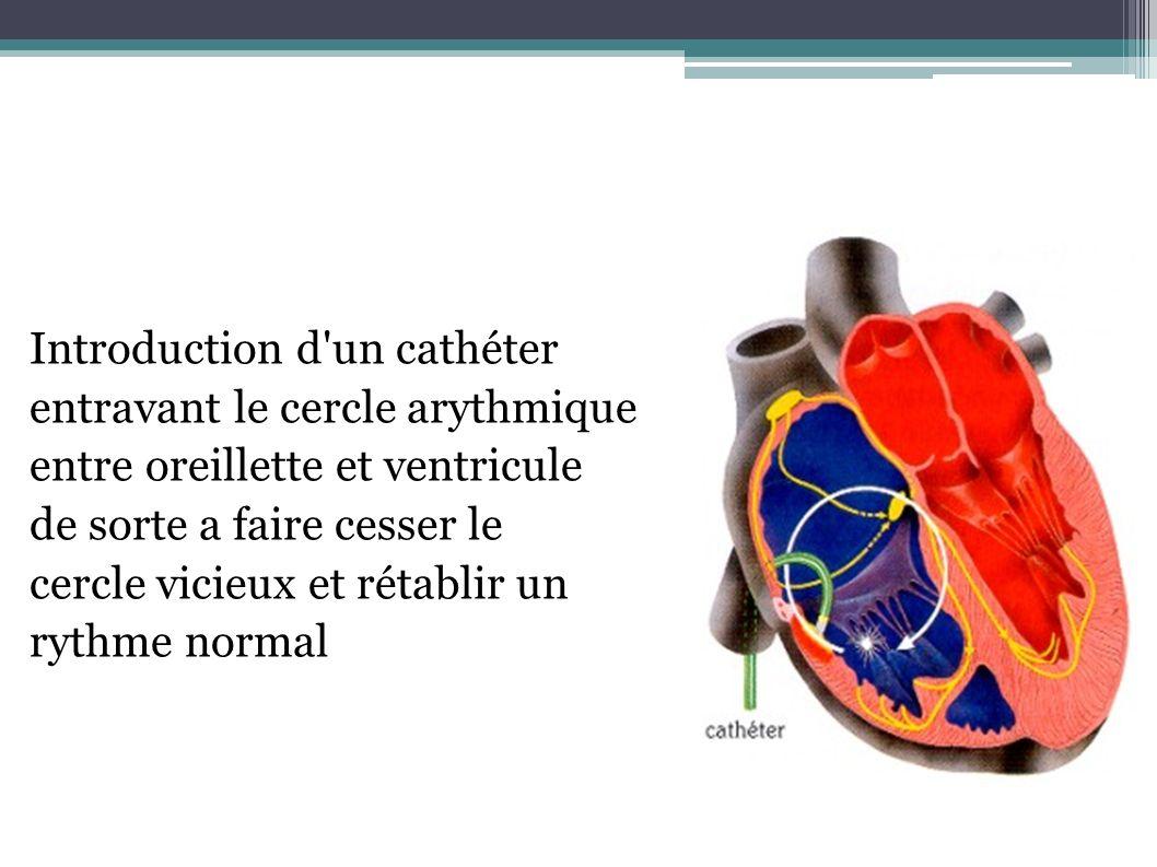 Introduction d'un cathéter entravant le cercle arythmique entre oreillette et ventricule de sorte a faire cesser le cercle vicieux et rétablir un ryth