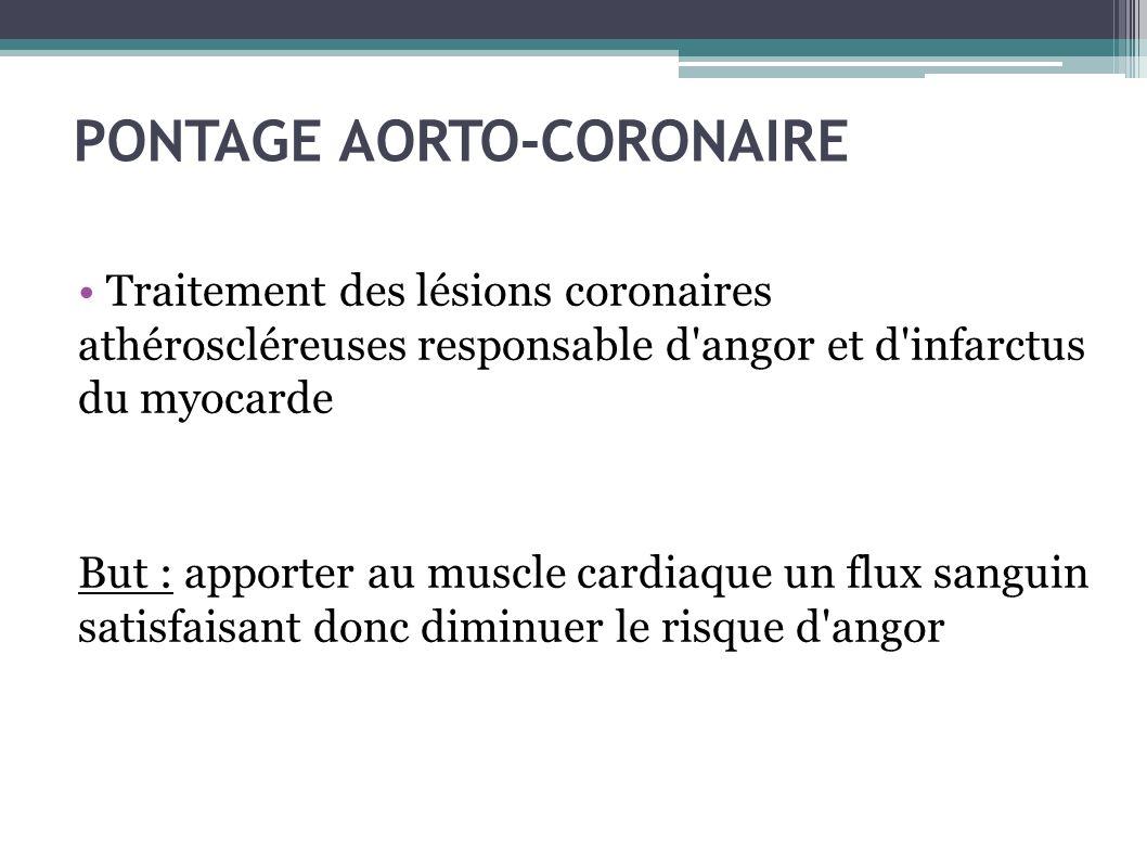 PONTAGE AORTO-CORONAIRE Traitement des lésions coronaires athéroscléreuses responsable d'angor et d'infarctus du myocarde But : apporter au muscle car
