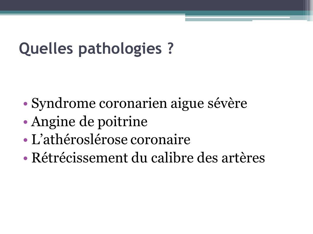 Quelles pathologies ? Syndrome coronarien aigue sévère Angine de poitrine Lathéroslérose coronaire Rétrécissement du calibre des artères