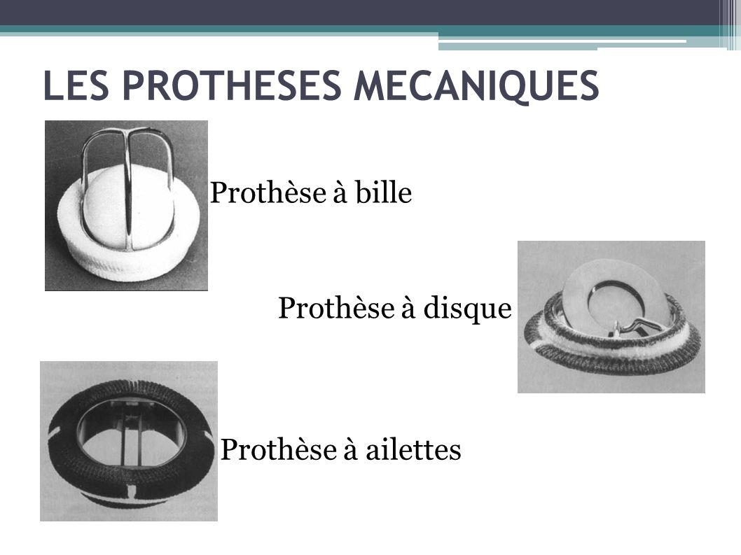 LES PROTHESES MECANIQUES Prothèse à bille Prothèse à disque Prothèse à ailettes