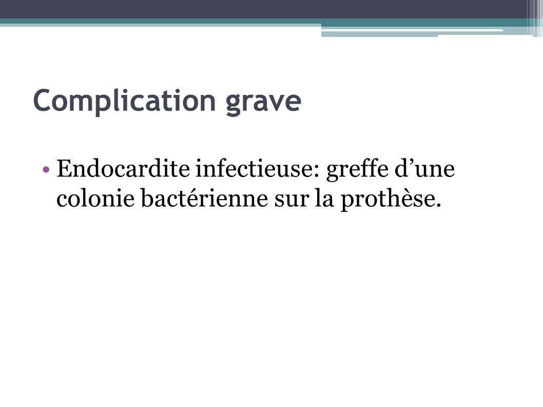 Complication grave Endocardite infectieuse: greffe dune colonie bactérienne sur la prothèse.