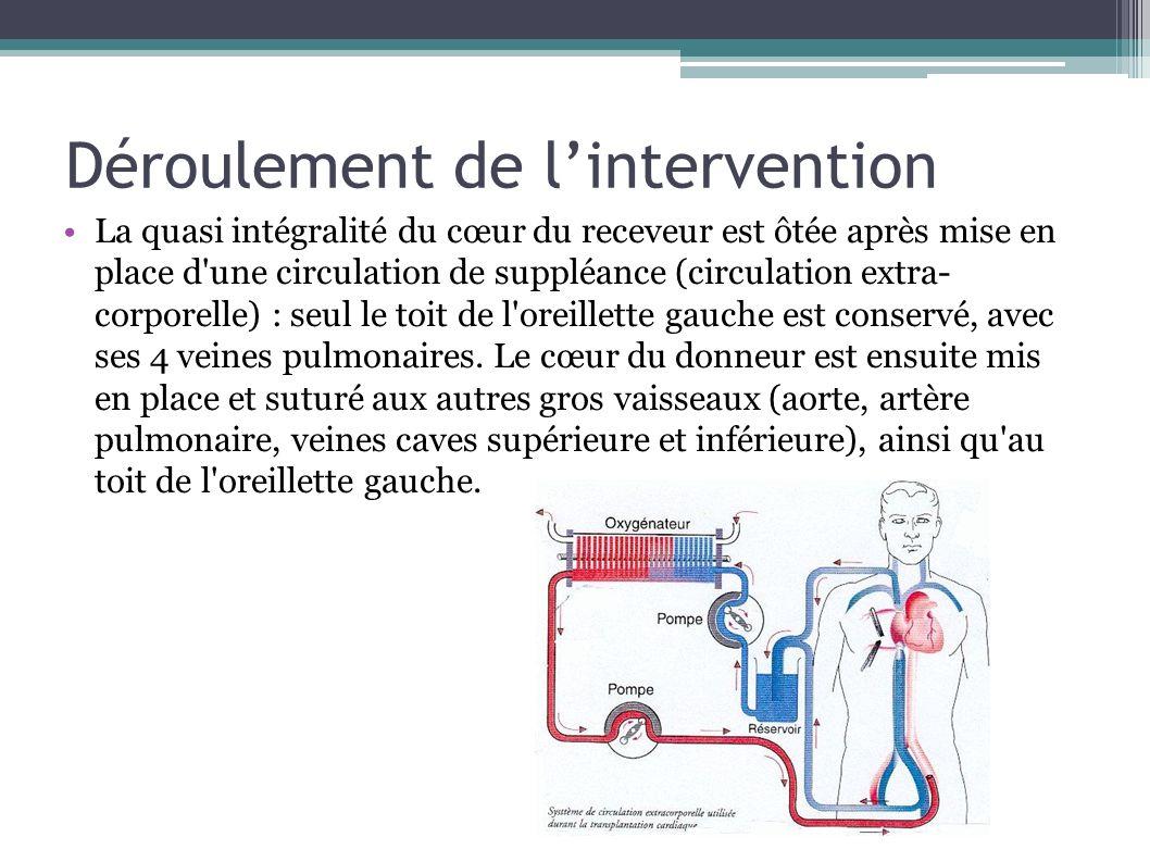 Déroulement de lintervention La quasi intégralité du cœur du receveur est ôtée après mise en place d'une circulation de suppléance (circulation extra-