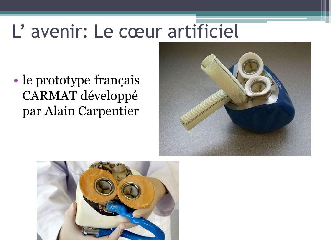 L avenir: Le cœur artificiel le prototype français CARMAT développé par Alain Carpentier