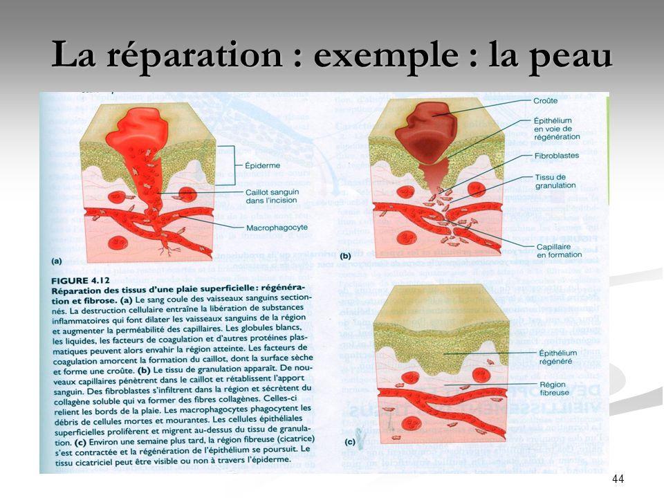 44 La réparation : exemple : la peau