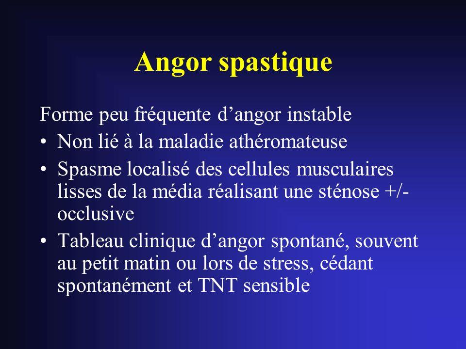 Angor spastique Forme peu fréquente dangor instable Non lié à la maladie athéromateuse Spasme localisé des cellules musculaires lisses de la média réa