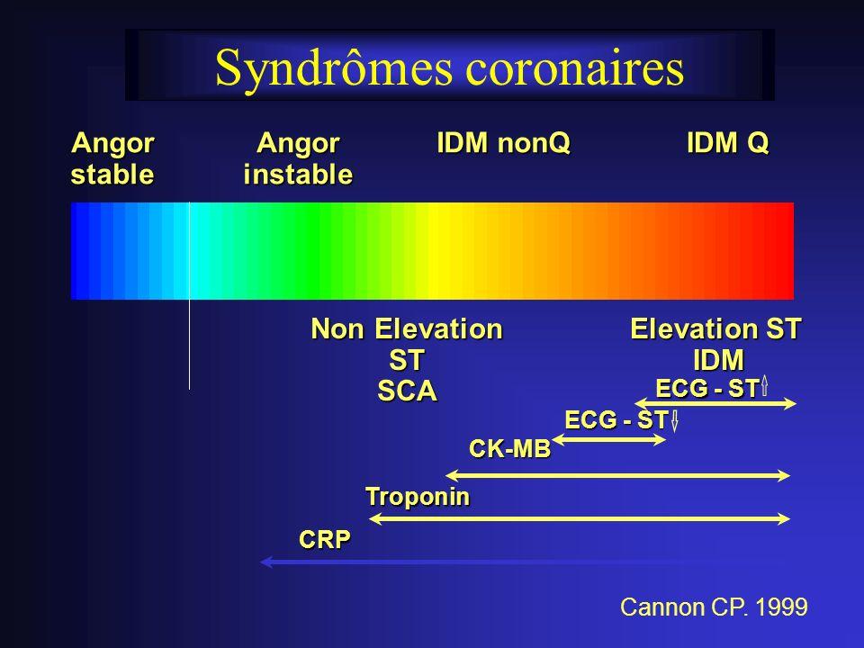 Syndrômes coronaires AngorstableAngorinstable IDM nonQ IDM Q Elevation ST Elevation ST IDM IDM Non Elevation ST SCA ECG - ST CK-MB Troponin CRP Cannon