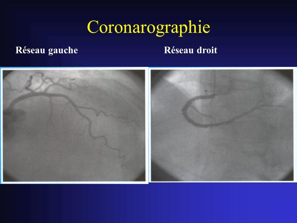 Coronarographie Réseau gaucheRéseau droit