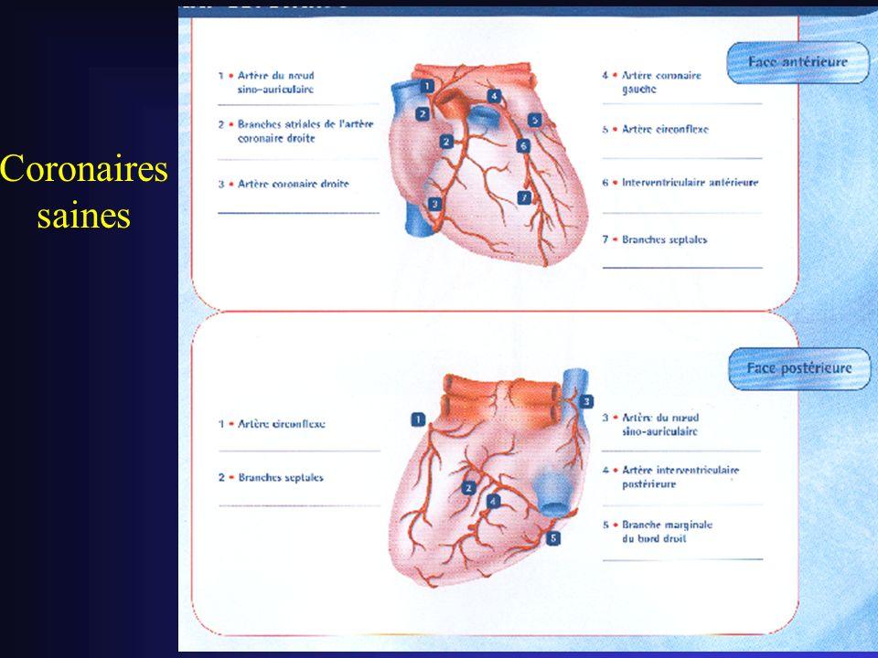 Coronaires saines