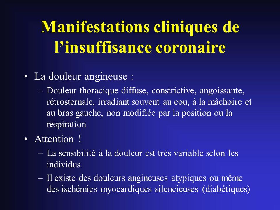 Manifestations cliniques de linsuffisance coronaire La douleur angineuse : –Douleur thoracique diffuse, constrictive, angoissante, rétrosternale, irra