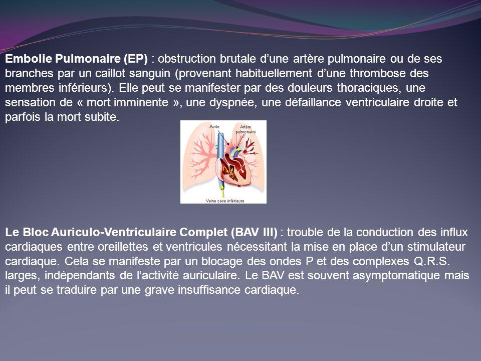 Embolie Pulmonaire (EP) : obstruction brutale dune artère pulmonaire ou de ses branches par un caillot sanguin (provenant habituellement dune thrombose des membres inférieurs).