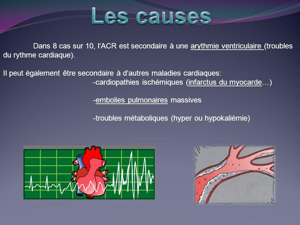 Dans 8 cas sur 10, lACR est secondaire à une arythmie ventriculaire (troubles du rythme cardiaque).