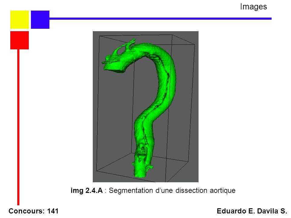 Concours: 141 Eduardo E. Davila S. Images img 2.4.A : Segmentation dune dissection aortique