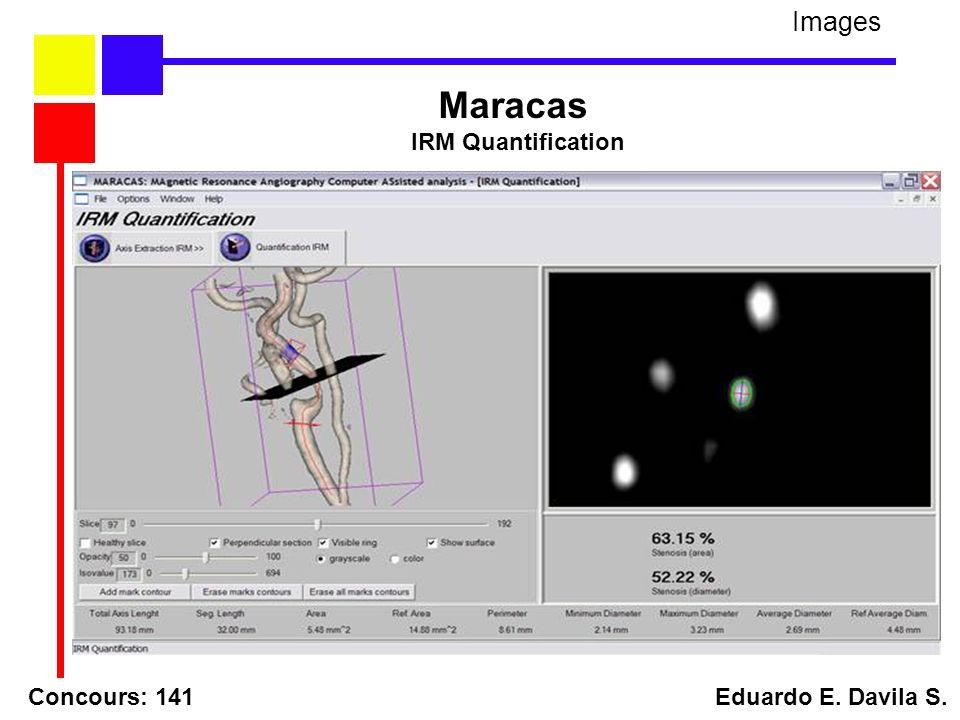 Concours: 141 Eduardo E. Davila S. Images Maracas IRM Quantification