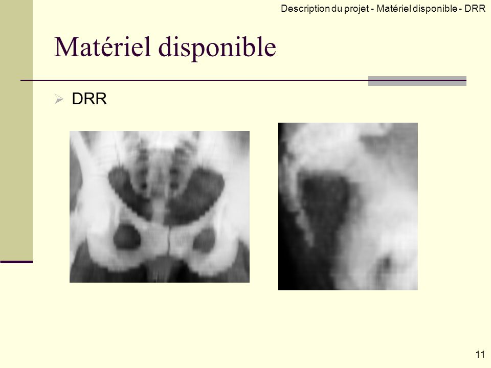 Matériel disponible DRR 11 Description du projet - Matériel disponible - DRR