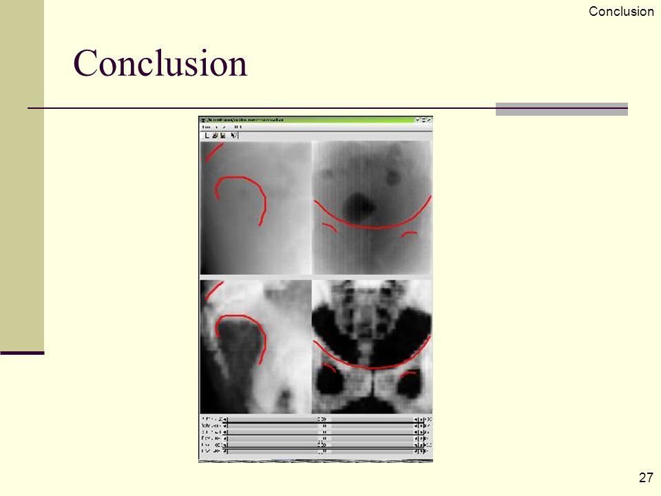 Conclusion 27 Conclusion