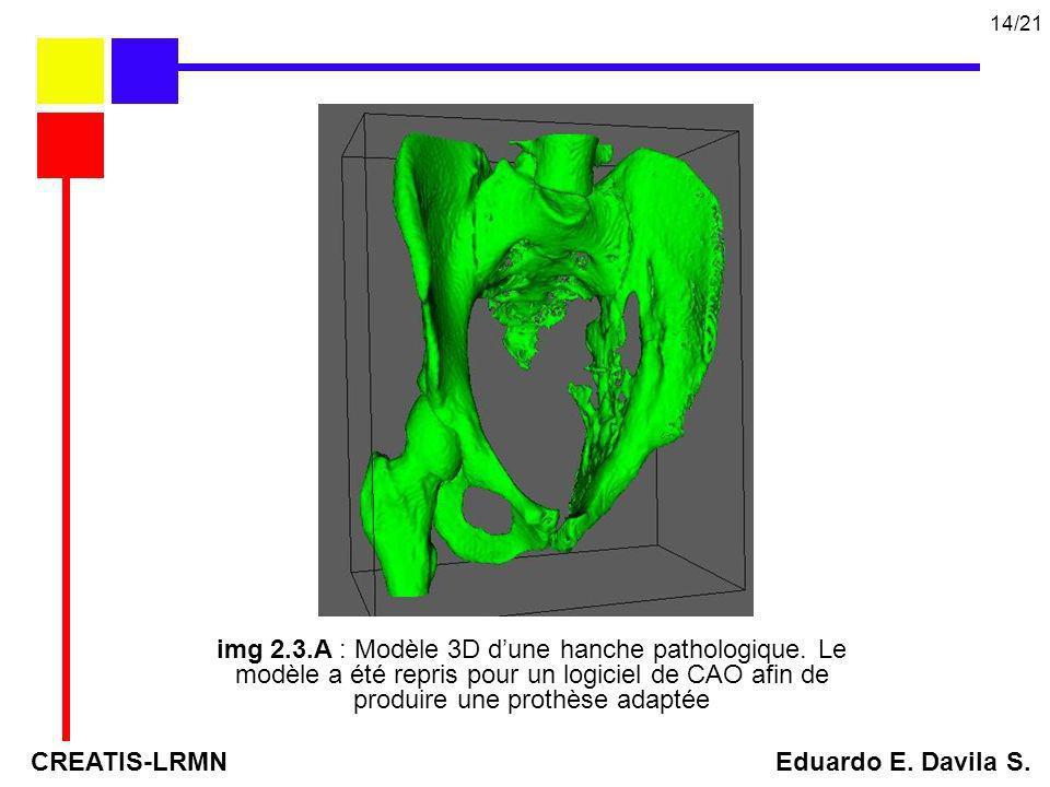 img 2.3.A : Modèle 3D dune hanche pathologique. Le modèle a été repris pour un logiciel de CAO afin de produire une prothèse adaptée CREATIS-LRMN Edua
