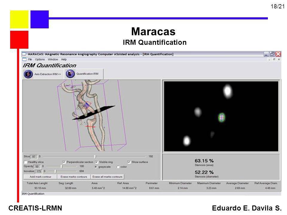 Maracas IRM Quantification CREATIS-LRMN Eduardo E. Davila S. 18/21