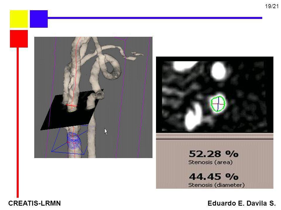 CREATIS-LRMN Eduardo E. Davila S. 19/21