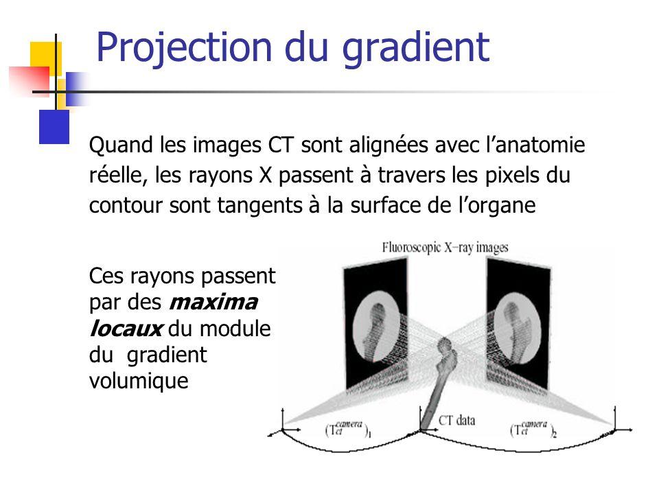 Projection du gradient Quand les images CT sont alignées avec lanatomie réelle, les rayons X passent à travers les pixels du contour sont tangents à la surface de lorgane Ces rayons passent par des maxima locaux du module du gradient volumique
