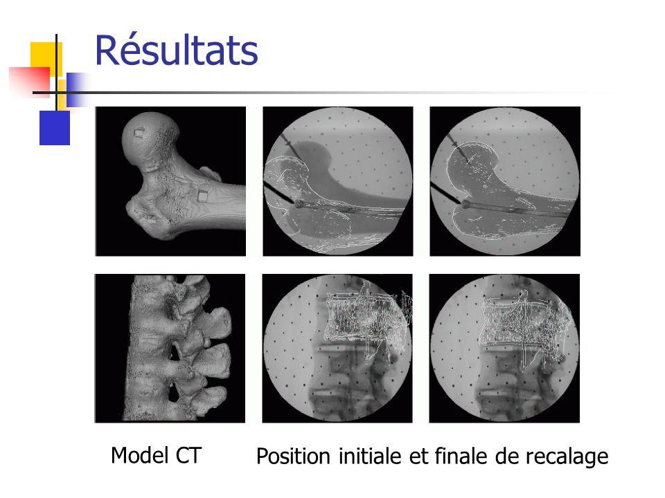 Résultats Model CT Position initiale et finale de recalage