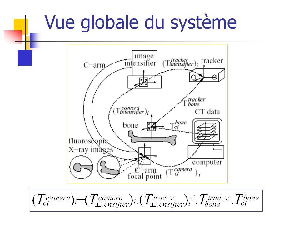 Vue globale du système